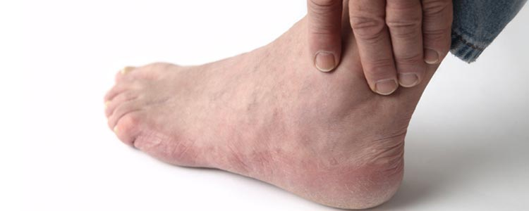 All About Gout