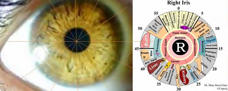 What You Need to Know About Iridology
